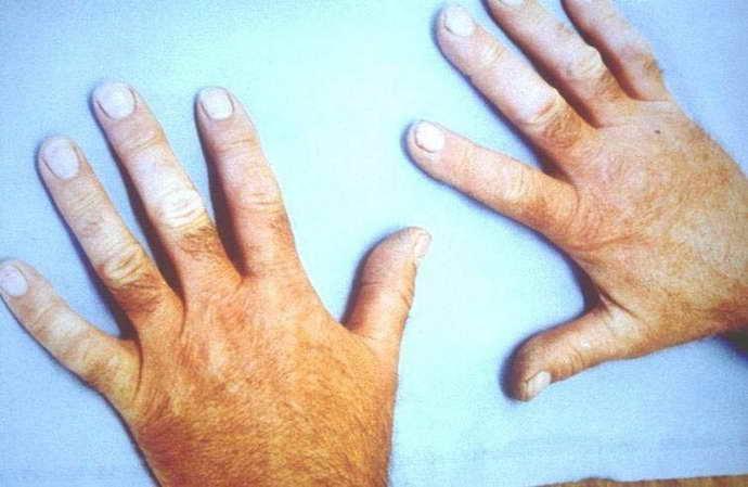что такое вибрационная болезнь