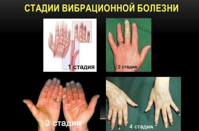 этапы развития вибрационной болезни