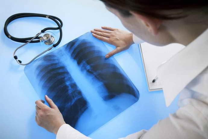 В чем недостатки рентгена грыжи позвоночника