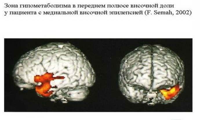что такое височная эпилепсия