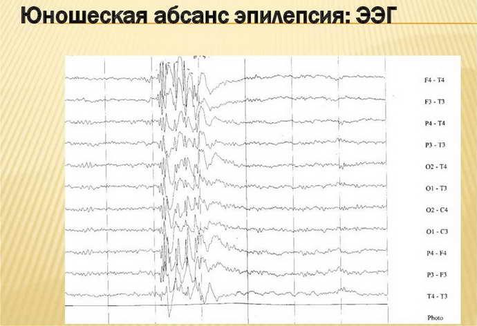 Дифференциальная диагностика юношеской миоклонической эпилепсии