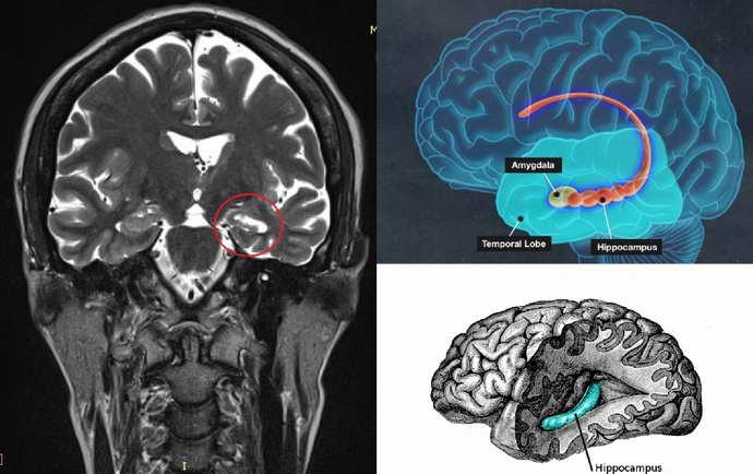 Миоклонус-эпилепсия на мрт