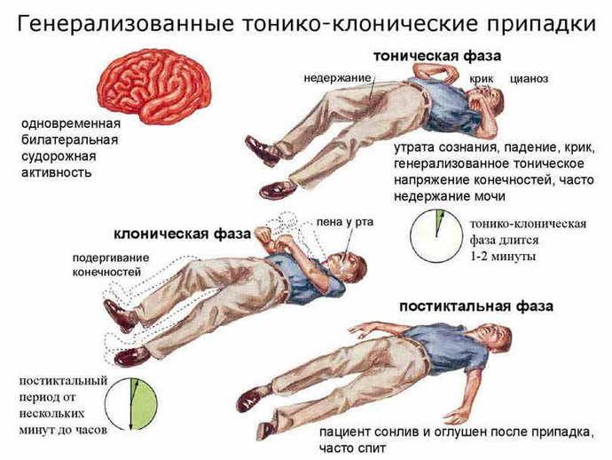 что такое юношеская миоклоническая эпилепсия