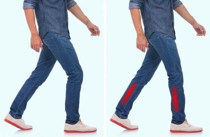 защемление нерва в ноге признаки