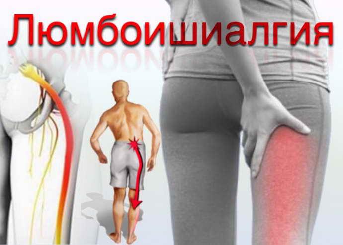 защемление нерва в ноге причины