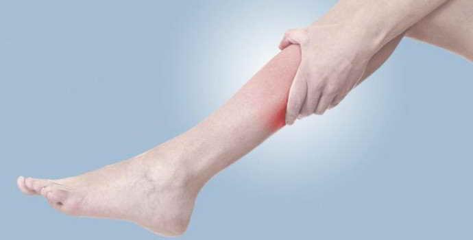 Защемление нерва в ноге: причины, сопутствующие симптомы, лечение
