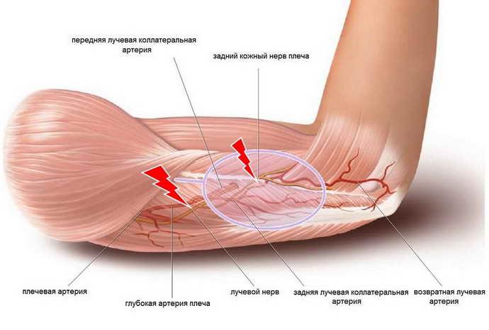 защемление нерва в плечевом суставе причины
