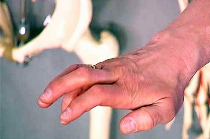 защемление нерва в плечевом суставе симптоматика