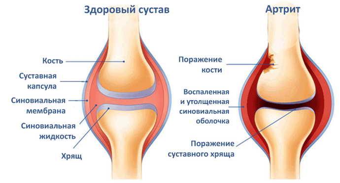 защемление нерва в плечевом суставе особенности