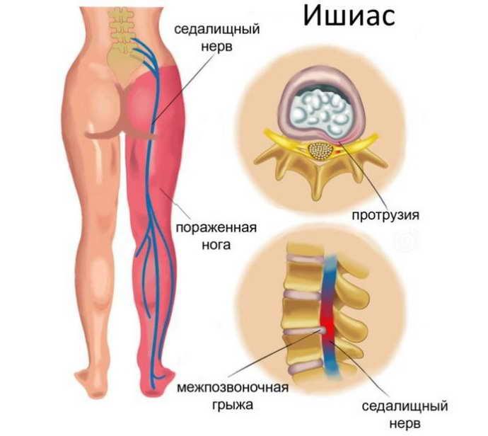 защемление нерва в тазобедренном суставе симптомы