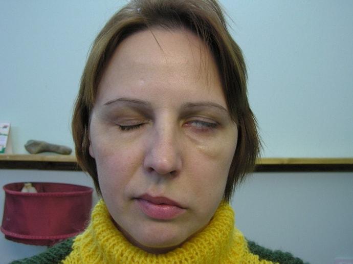 Как лечить застуженый лицевой нерв